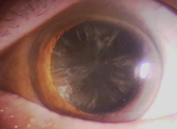 白内障の眼