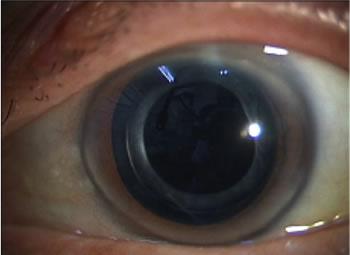 白内障術後の眼