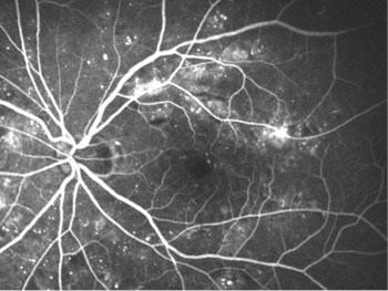 糖尿病網膜症の蛍光眼底造影検査
