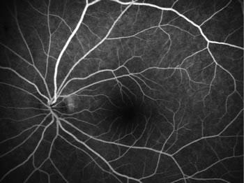 正常な蛍光眼底造影検査