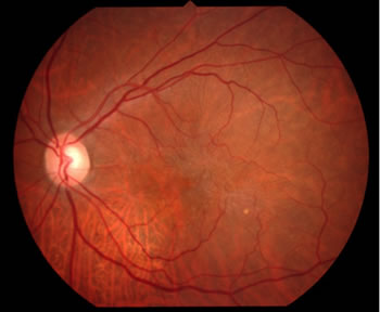 網膜上膜の眼底