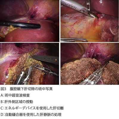 図3 腹腔鏡下肝切除の術中写真