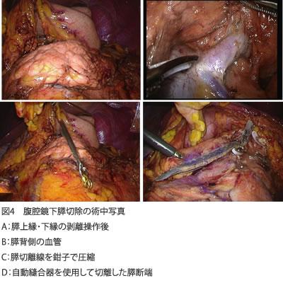 図4 腹腔鏡下膵切除の術中写真