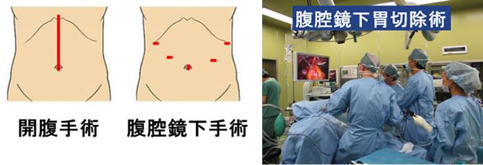 開腹手術 腹腔鏡下手術