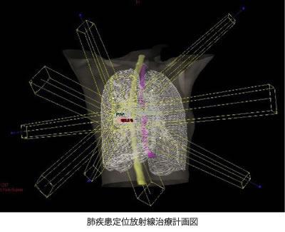 肺疾患定位放射線治療計画図