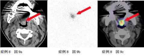症例8 図9a,図9b,図9c