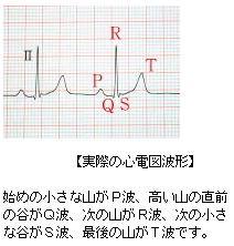 実際の心電図波形