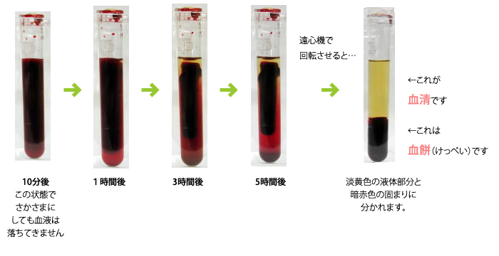 採血 放置後の 血の固まる様子