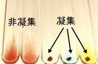 血液型(試験管法)の判定写真