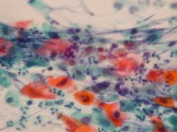 扁平上皮癌細胞