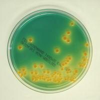 腸管出血性大腸菌 (O-157、O-26、O-111 など)