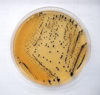 サルモネラ菌