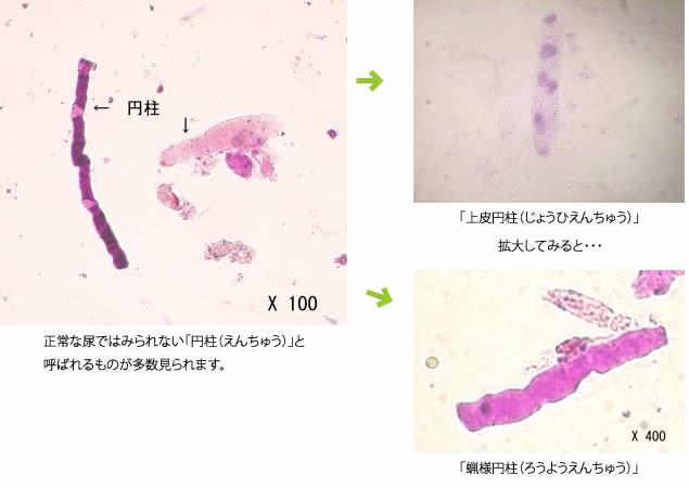 腎臓の機能が低下し、尿に蛋白が認められる時の尿