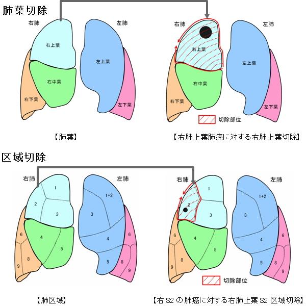 肺葉切除と区域切除