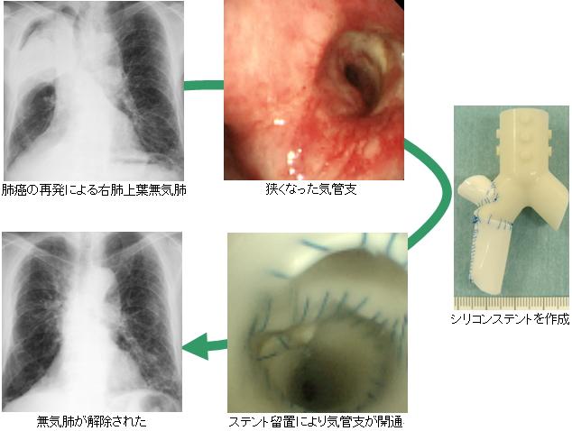 気道狭窄に対するステント治療