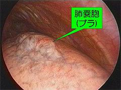 肺嚢胞(ブラ)