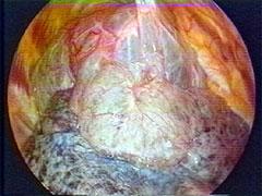 巨大肺嚢胞症