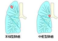 末梢型肺癌/中枢型肺癌