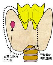 右葉に限局した癌と甲状腺の切除範囲