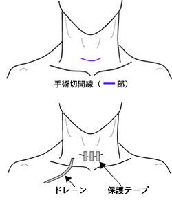 甲状腺手術