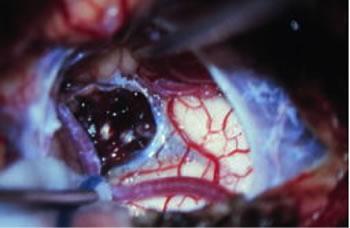 延髄海綿状血管腫の術中写真