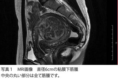 写真1 MRI画像 直径6cmの粘膜下筋腫 中央の丸い部分は全て筋腫です。
