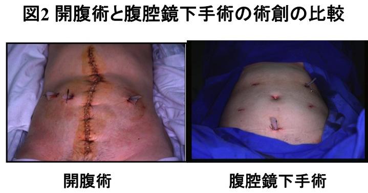 図2 開腹術と腹腔鏡下手術の術創の比較