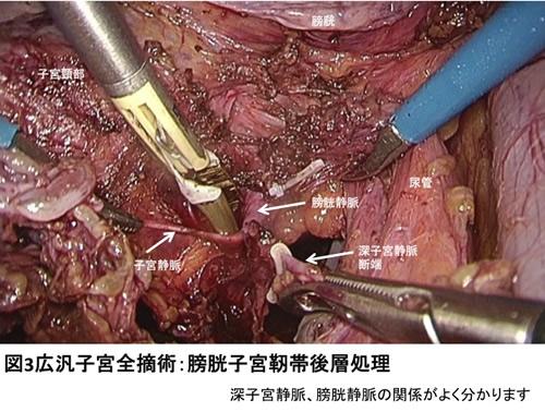図3 広汎子宮全摘術:膀胱子宮靭帯後層処理
