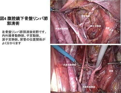 図4 腹腔鏡下骨盤リンパ節郭清術