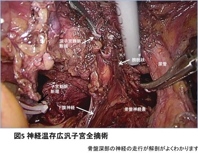 図5 芯径温存広汎子宮全摘術