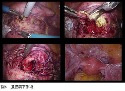 図4 腹腔鏡下手術