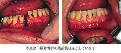下顎骨骨折の術前術後