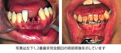 左下1、2番歯牙完全脱臼の術前術後