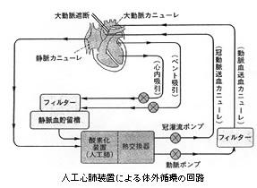人口心肺装置による体外循環の回路