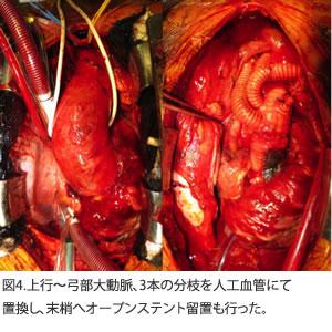 図4.上行~弓部大動脈、3本の分枝を人工血管にて置換し、末梢へオープンステント留置も行った。