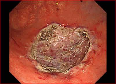 図6.切除後潰瘍の近接像