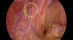 骨盤腹膜の内膜症病変