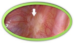 骨盤腹膜の内膜症病変<4Kカメラによる拡大像>