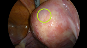 子宮表面の内膜症病変